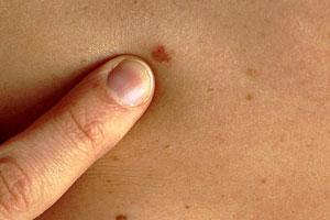 1 стадия рака кожи