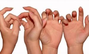 Бородавки на пальцах рук и ног: причины и лечение