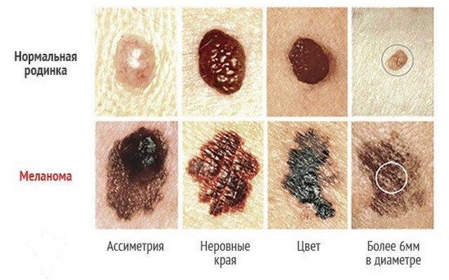 Рак кожи, симптомы начальной стадии, причины возникновения ...