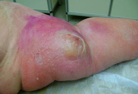Рожа болезнь: лечение, симптомы, профилактика и фото