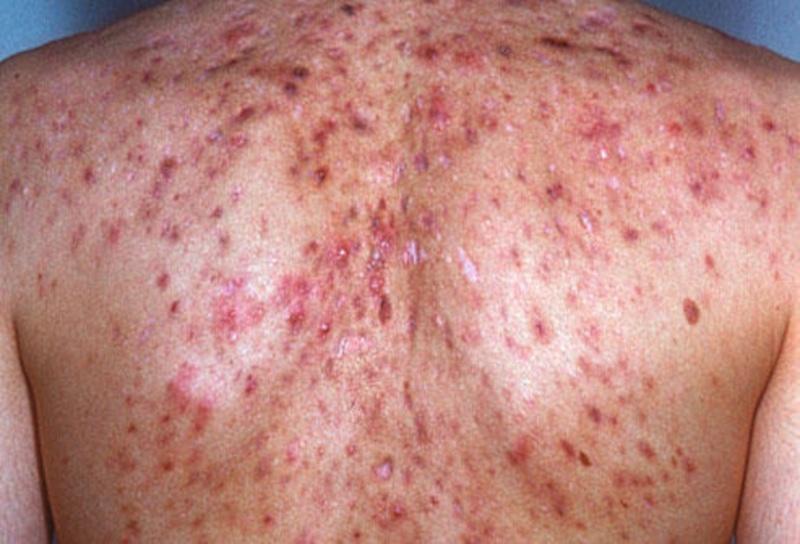 Фото – 3 Запущенная воспаленная сыпь на плечах и спине