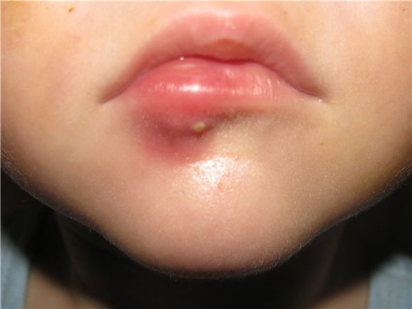 Лечение фурункула на глазу, брови, губе