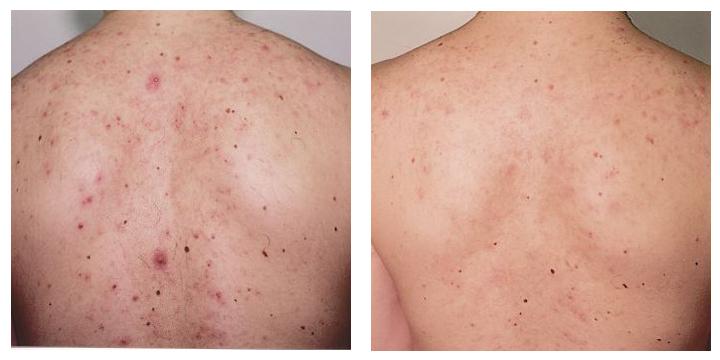 Фото – 6 Чтобы лечение прыщей на спине было эффективным, нужно для начала определить причину их появления