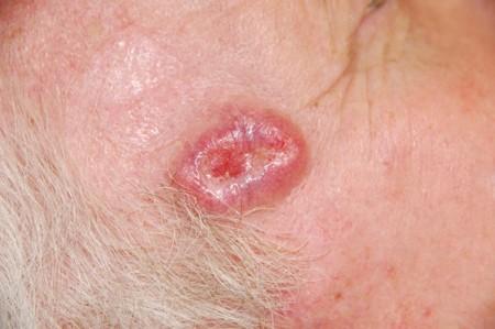 Базально-клеточный рак кожи (фото)