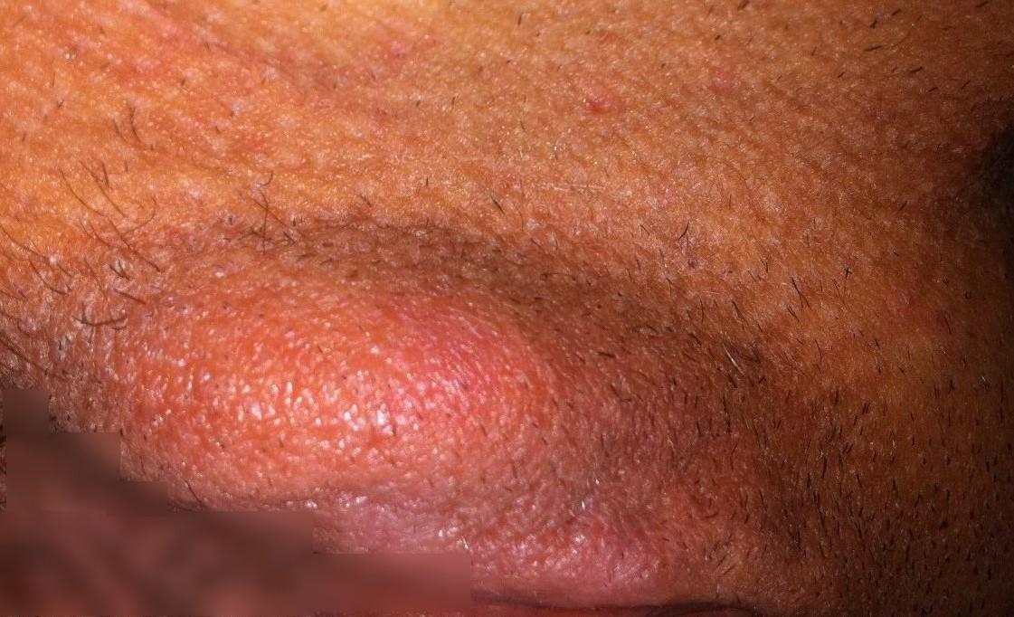 Фурункул на половой губе: причины, симптомы и лечение