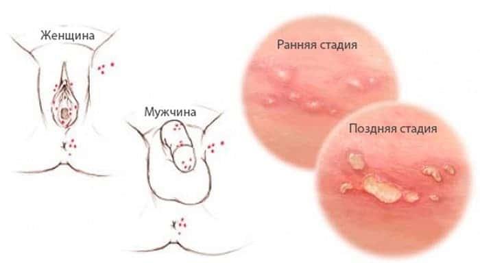 Симптомы герпеса на интимном месте у женщин