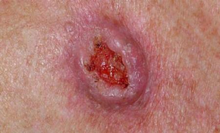 Плоскоклеточный рак кожи (фото)