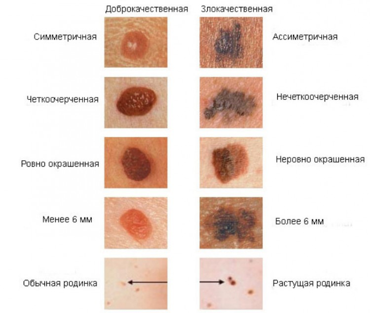 Признаки рака кожи (меланомы) фото