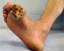 рак кожи на ноге