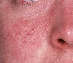 Фото дерматита на лице