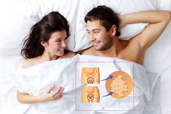 незащищенный половой контакт - один из способов заражения ВПЧ