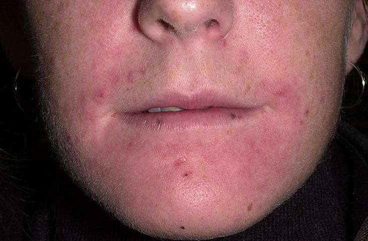 Периоральный дерматит. Фото.