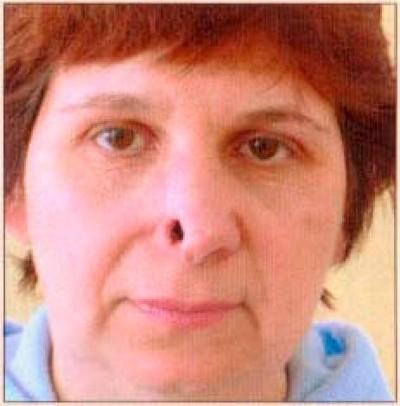 Рак кожи носа, основные признаки болезни, лечение и прогноз ...