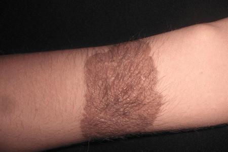 Пятна на ногах: коричневые, темные, красные, белые, что они значат ...