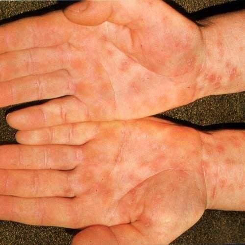 Как проявляется сифилис, как выявить эту болезнь после заражения ...
