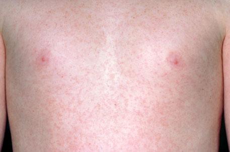 Симптомы краснухи у детей - Сыпь при краснухе - Признаки краснухи ...