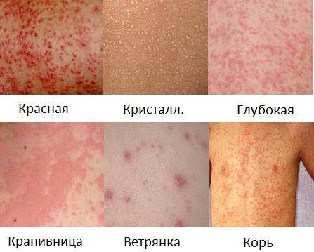 Потница у детей: фото, симптомы и лечение