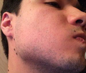 Алопеция бороды у мужчин, выпадение волос на бороде пятнами