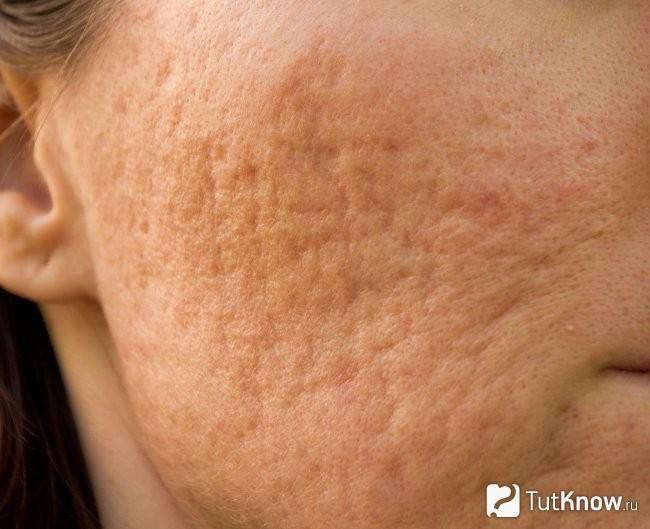 Себорея на лице: причины, симптомы и лечение