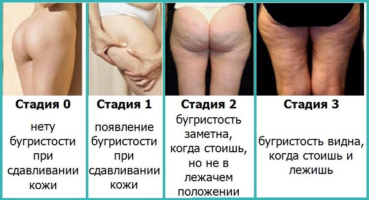 Как избавиться от целлюлита на ногах: фото, упражнения, способы ...