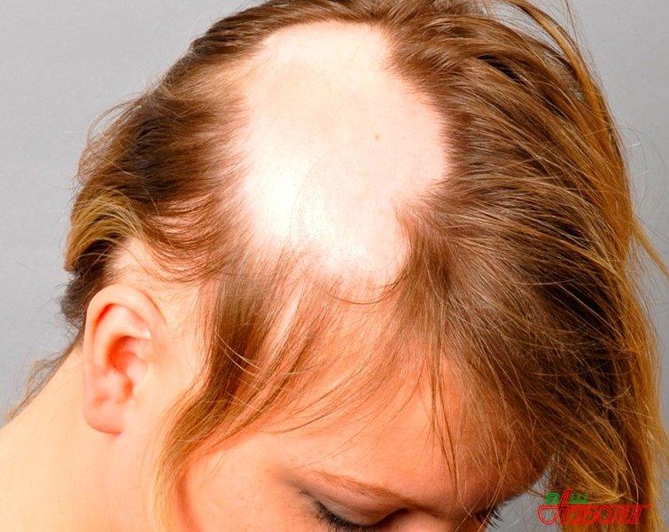 Народные средства от облысения головы » Ваш доктор Айболит