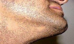 Гнездная алопеция бороды: причины и лечение