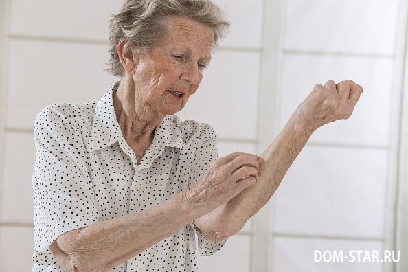 Что такое старческий зуд? Старческий зуд: причины и лечение