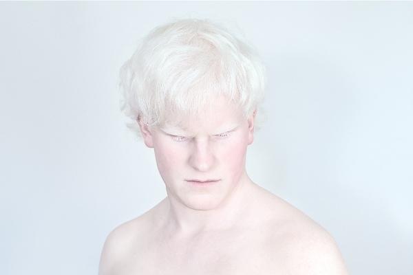 Депигментация кожи: причины и лечение у взрослых и детей