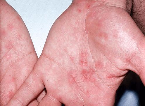 Кожный сифилис на теле: лечение сыпи на коже и руках