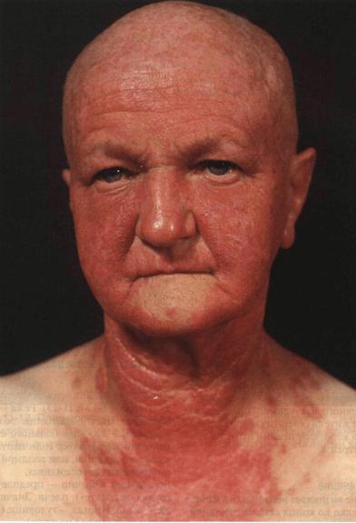 ФОТОТОКСИЧЕСКИЕ И ФОТОАЛЛЕРГИЧЕСКИЕ РЕАКЦИИ * My dermatology