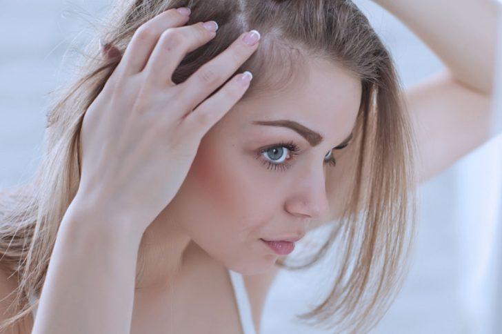 Диффузное выпадение волос у женщин: причины, лечение — Evehealth