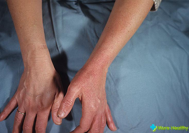 Рожистое воспаление на руке и его лечение
