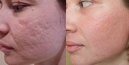 Как УБРАТЬ шрамы и РУБЦЫ без операции? Лазерная шлифовка