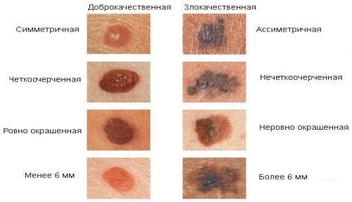 Меланома: симптомы, стадии, диагностика, прогноз