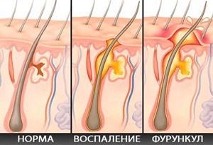 МнеПомог.ru » Фурункул — причины и лечение