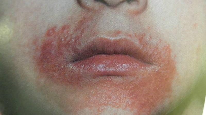 Началом периорального дерматита можно назвать сыпь, зуд и жжение вокруг ротовой полости
