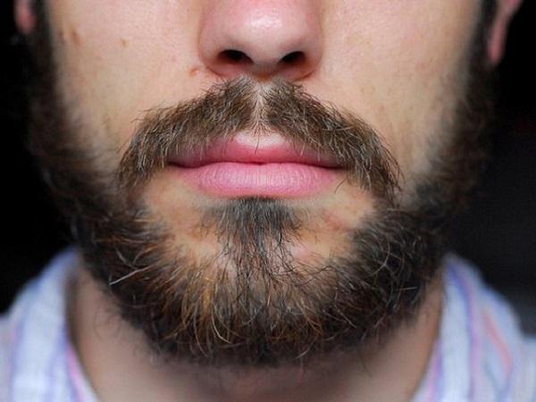 Алопеция на бороде у мужчин: причины и симптомы