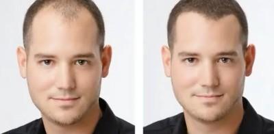 Выпадение волос: лечение народными средствами