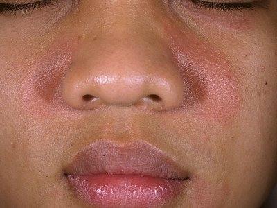 Себорея на лице: фото, лечение и симптомы заболевания