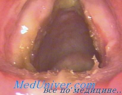 Гуммозный сифилис гортани. Диагностика и лечение сифилиса гортани