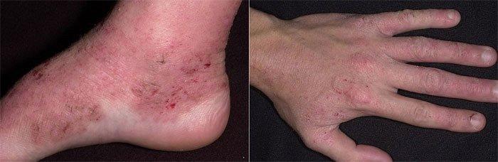 Атопический дерматит у взрослых - лечение, симптомы и диета, фото ...