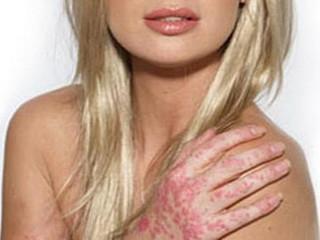 Чем опасен псориаз на половых органах: симптомы, диагностика и ...