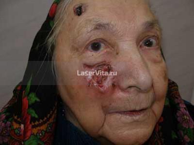 Боль и на длительно незаживающие язвы кожи левой щеки и лба