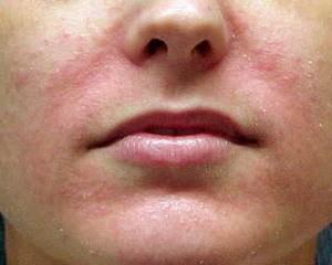Себорейный дерматит. Классификация, симптомы и лечение