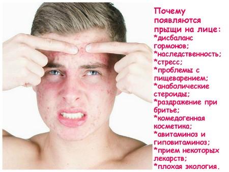 Причины появления вульгарных угрей, особенности лечения и профилактика