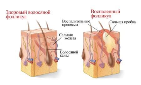 Лекарство от выпадения волос - медицинские препараты: бальзам ...