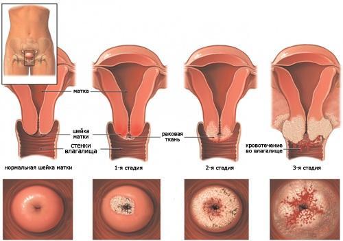 Симптомы папилломавируса у мужчин, когда проявляется вирус ...