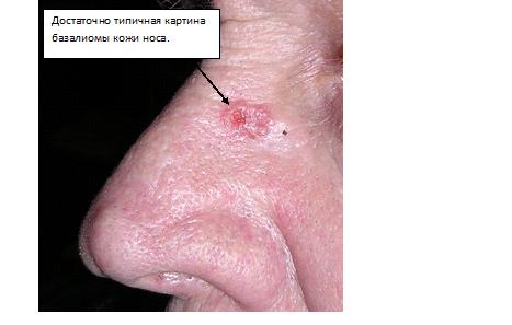 Базалиома, плоскоклеточный рак кожи: симптомы, лечение - Равное ...