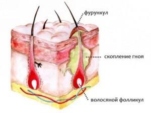 Фурункул на лице: причины появления, стадии развития, методы лечения