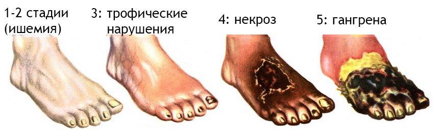 Рожа на ноге фото начальная стадия: Как начинается?
